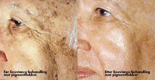 Før Exuviance-behandling for og mot pigmentflekker