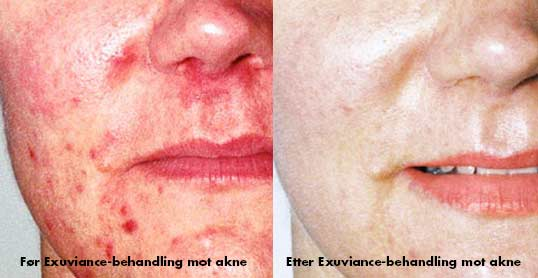 Førog etter Exuviance-behandling mot akne